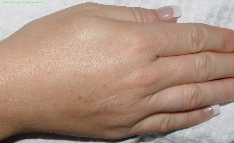 HR_Nd_Hnd_Sappenfield_XX_2A_5wks_Ctr-768x472 Hair Removal
