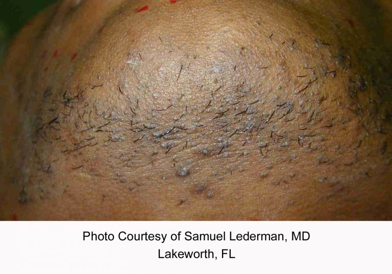 Lederman_pfb_before-768x536 Hair Removal