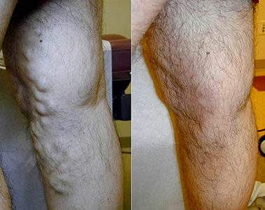 Varicose-Vein-EVLT-Before-After1 Before & After