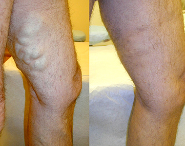 Varicose-Vein-EVLT-Before-After2 Before & After