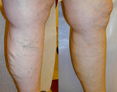 Varicose-Vein-EVLT-Before-After3 Before & After