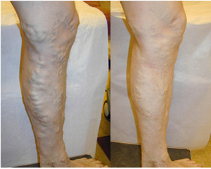thumb03 Varicose Vein Treatments