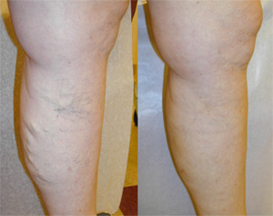 thumb04 Varicose Vein Treatments