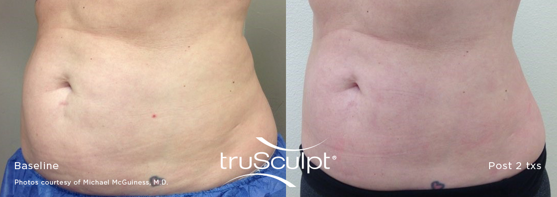 truSculpt_Body_13 Before & After