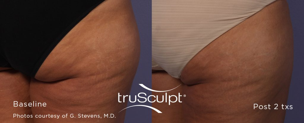 truSculpt_Body_5-1024x416 Cellulite Reduction
