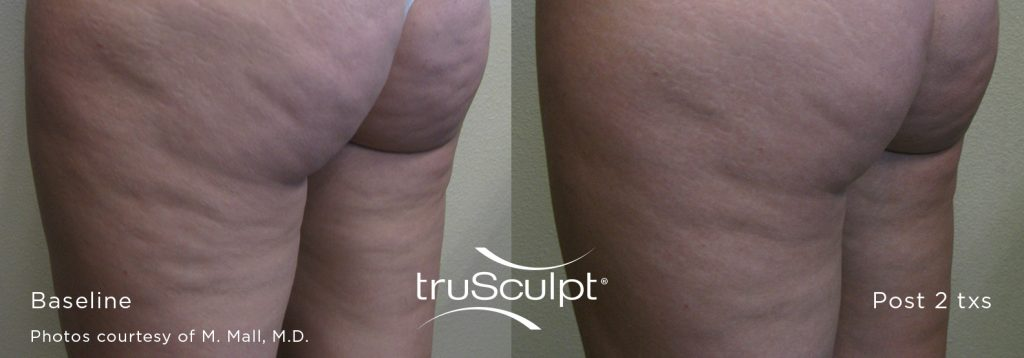 truSculpt_Cellulite_1-1024x358 Cellulite Reduction