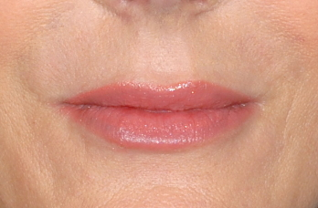 Restylane-fillers-Dr-Billingy-5 Before & After