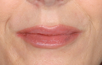 Restylane-fillers-Dr-Billingy-6 Before & After