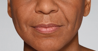 Restylane-fillers-Dr-Billingy-7 Before & After