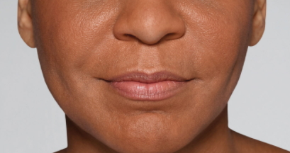 Restylane-fillers-Dr-Billingy-8 Before & After