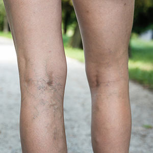 sclerotherapy Services