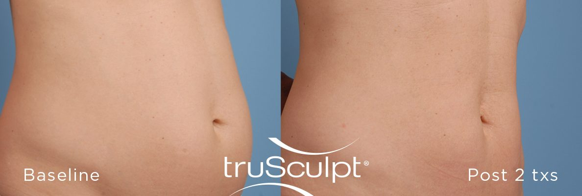 truSculpt_Body_1-n9g7fu05vblyfzk8f6bfrreqds7o39s2pmkrfk2aao Before & After