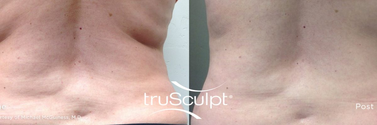 truSculpt_Body_10-n9g7fxrimnr3qfert7xy1qgkrbp4y270256pcv1wv4 Before & After