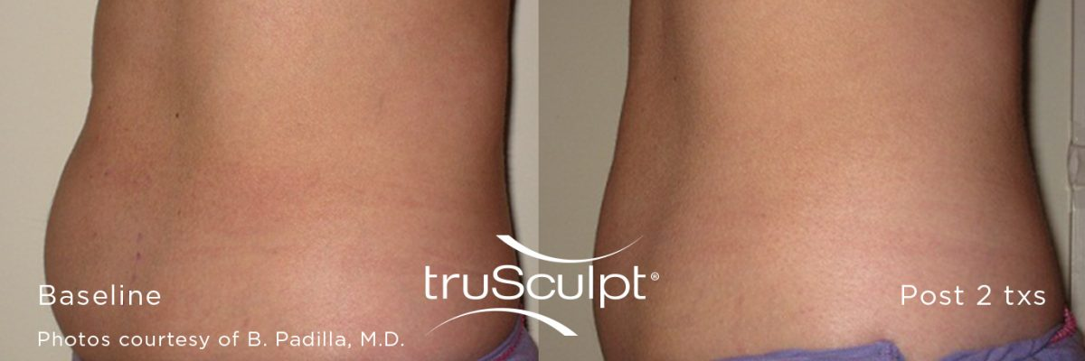 truSculpt_Body_6-n9g7fwtoftptetg4ypjbh8p45xtrqd39q0j7vl3b1c Before & After
