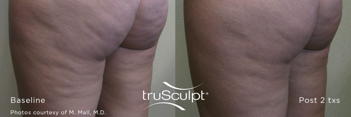 truSculpt_Cellulite_1-n9g7g1ivdzw90v9b79kgbpif4v6lsulxensn9ywc68 Before & After